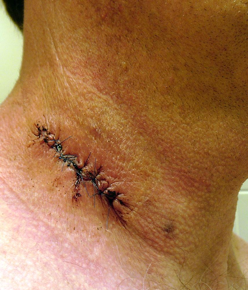 wound 2014-06-18 0955s