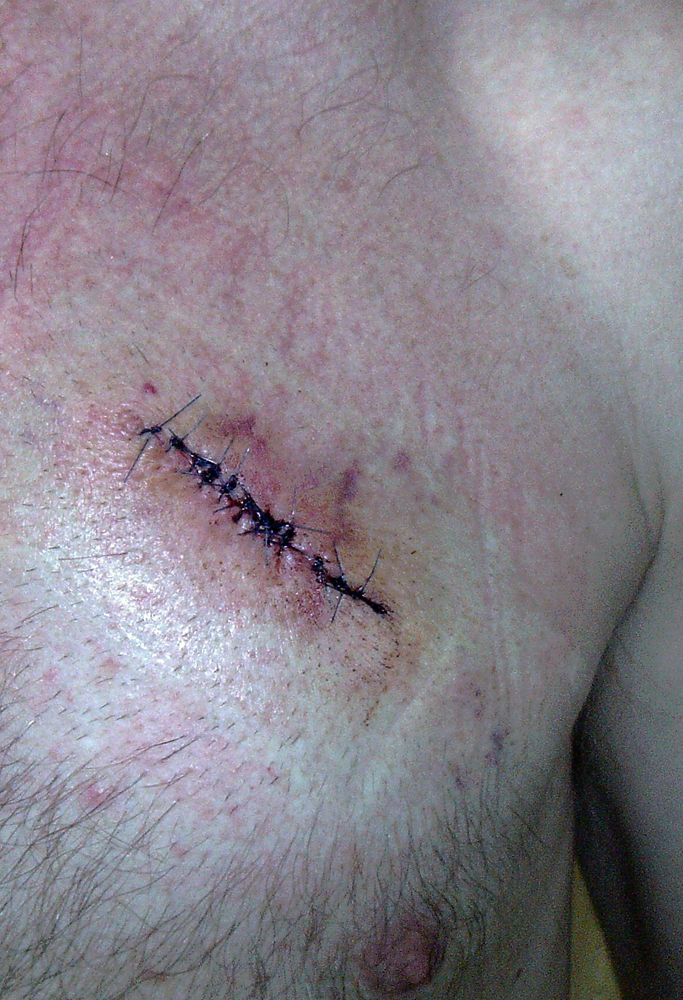 2014-10-22 healing